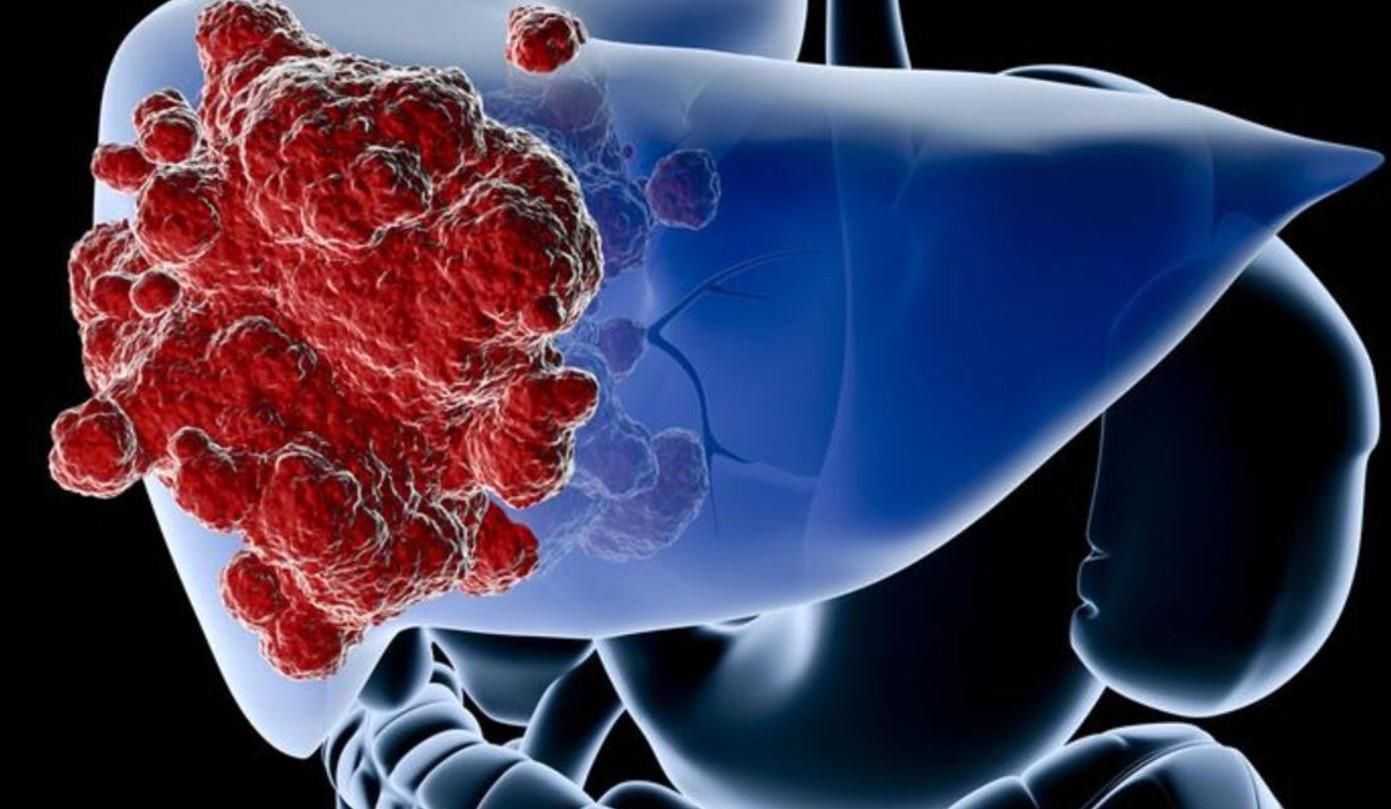 Karaciğer Sağlığınızı Koruyun